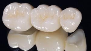clinica-dental-coronas-porcelana-carillas-medellin-colombia